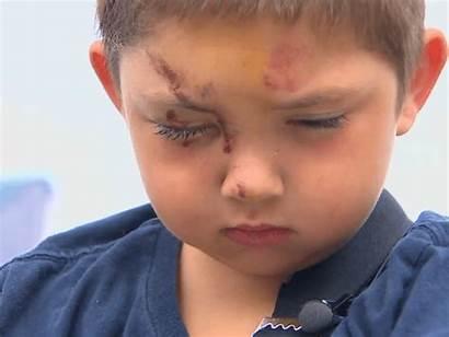 Boy Bullies Friend Defending Hospitalized Breitbart Bullying