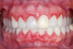 Home Remedies For GingivitisAbchomeremedies