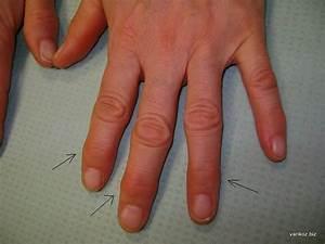 Мазь для лечения артроза коленного сустава форум