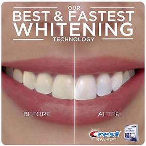 Best Whitening Strips Review 2018