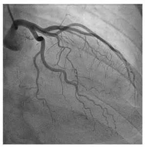 Coronary Angiography - Mercy Angiography Angiography