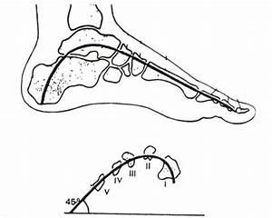 Болит сустав на ноге безымянный