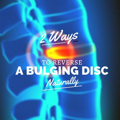 how to fix a bulging disc