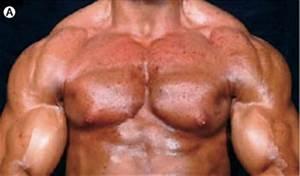 Anabolic Steroids  U2013 Buy Steroids Blog  U2013 Ibuysteroids  U00bb Anabolic Steroid Side Effects