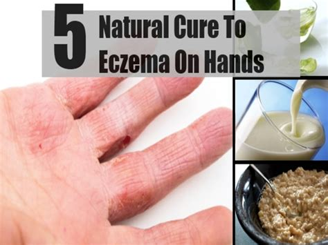 Best Treatment For Eczema Best Treatment For Eczema On Family Healthcare