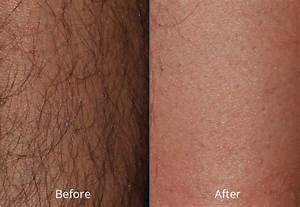 Laser Hair Removal at Chesapeake Medspa in Virginia