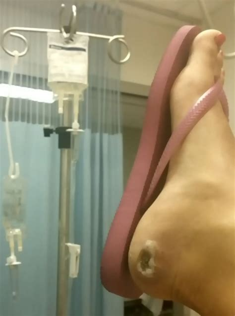 infection  pedicure sends toronto woman  er ctv