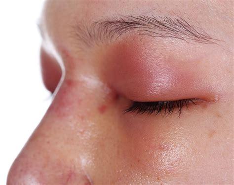 eyelid  swelling  swollen upper eyelid