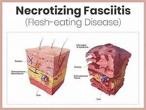 Necrotizing Fasciitis  Causes  Symptoms  Diagnosis