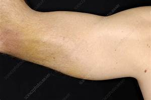 Torn Triceps Muscle Of The Arm - Stock Image  2479