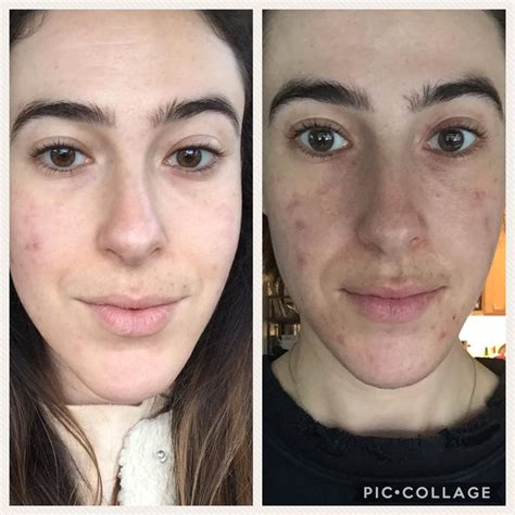 [before & After] I Know It's Not Huge, But For Me This Is