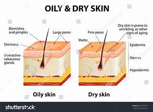 Oily Dry Skin Different Human Skin Stock Vector 290474231