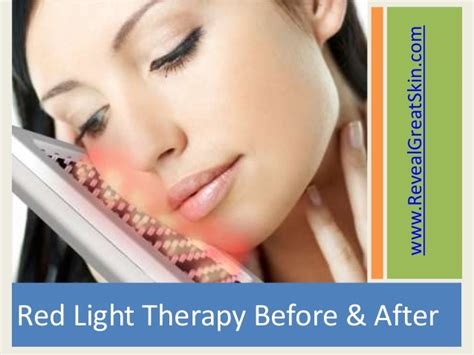 led light therapy before and after astonishing red light therapy before and after shots