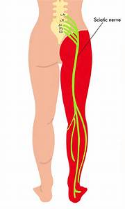 Sciatica And Radicular Leg Pain