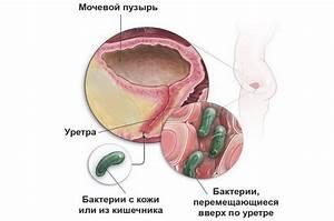 Ирбис средство от простатита