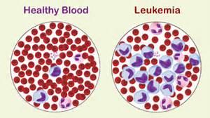 Leukemia ne demektir 'Leukemianın anlamı'  Leukemia Anticancer Drugs
