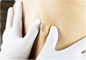 Skin Cysts  Sebaceous Cyst