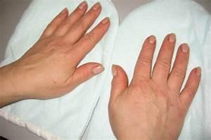 Лечение псориаза ногтей место