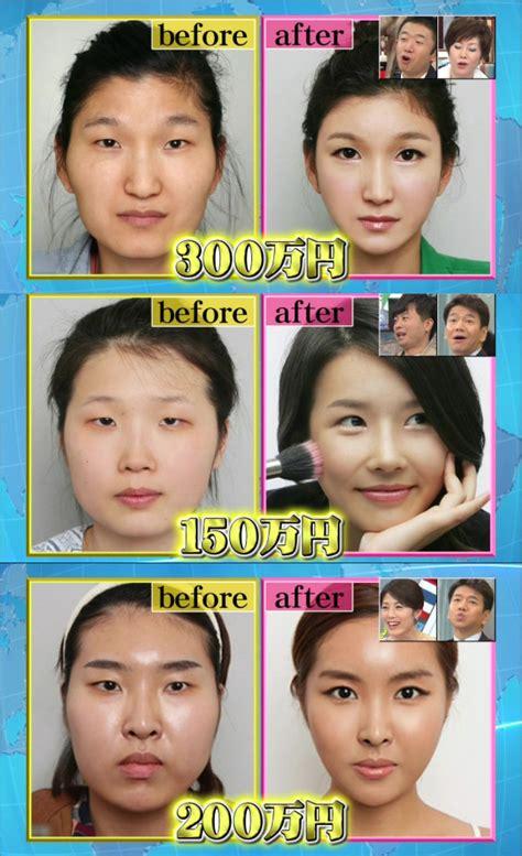 Korean Plastic Surgery Meme - brazilian man gets plastic surgery to look more korean mitsueki singapore lifestyle