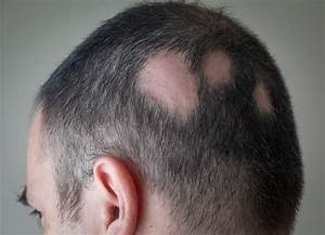 What Are The Different Types Of Alopecia Areata Alopecia