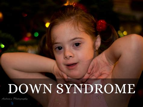 down syndrome by kukla1971