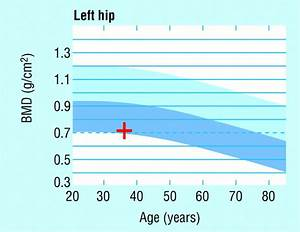 Bone Density Z Score Chart Bone Mineral Density Scans The Bmj