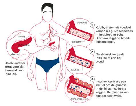 Te veel suiker eten diabetes