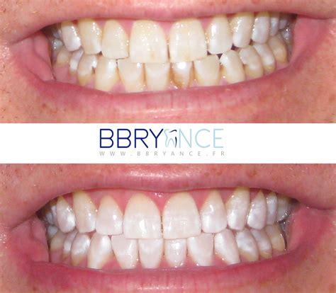 le led blanchiment dentaire 2 kit basic blanchiment des dents bbryance