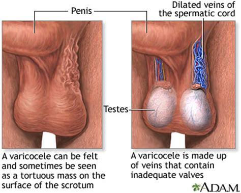 urology care foundation what are varicoceles