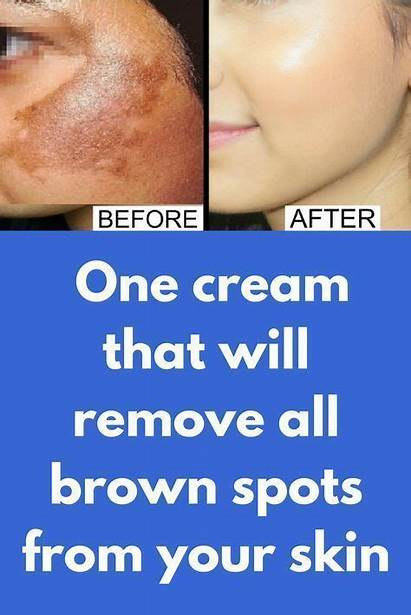 Face Remove Rid Spots Brown Cream Acne
