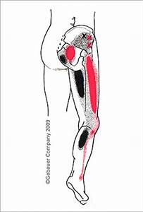 NAMTPT - Symptom Checker - Gluteus Minimus
