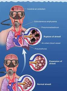 Mechanism Of Pulmonary Barotrauma In A Diver Breathing Compressed Gas