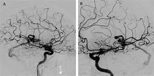 Transvenous Embolization Of A Ruptured Cerebral