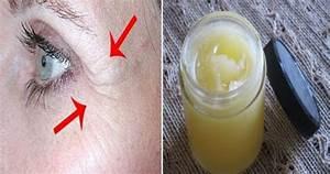 Какие российские лекарственные крема действуют от морщин под глазами