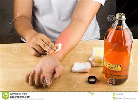 Apple Cider Vinegar Effective Natural Remedy For Skin Itch