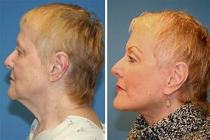 Orange County Facial Plastic Surgeon Introduces New True