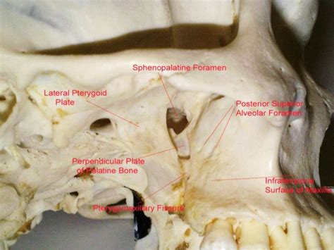 Nasal Floor by Pterygopalatine Fossa And Approaches By Dr Ashwin Menon