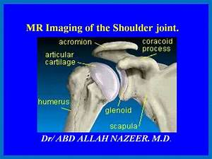Presentation1 Pptx  Shoulder Joint
