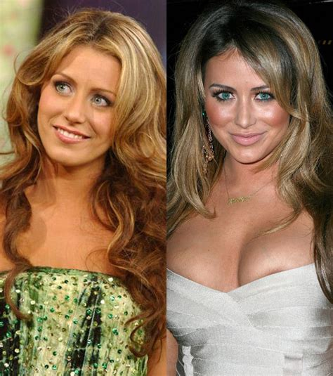 Aubrey O'day's Shocking Plastic Surgery Transformation