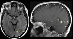 Cerebellar hemangioma