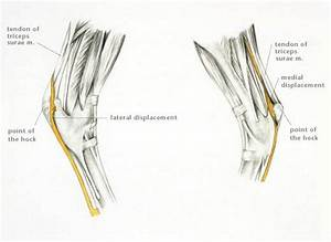 Luxation Of The Superficial Digital Flexor Tendon From The