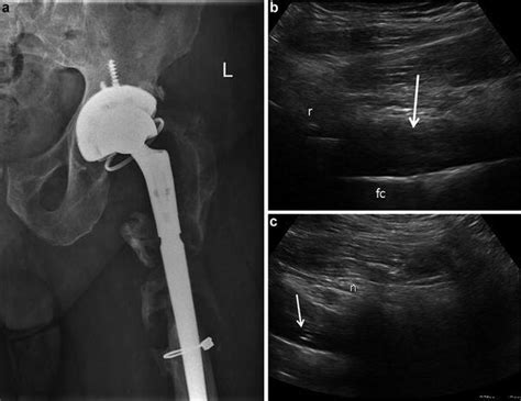 Ultrasound of the Hip | Musculoskeletal Key