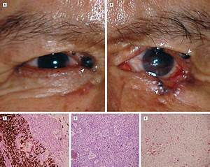 Multiple Pigmented Basal Cell Carcinomas of the Eyelids - Dermatology - JAMA Ophthalmology ...  Skin Cancer Birthmarks - pigmented