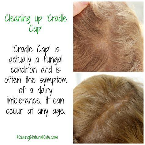 Cleaning Up Cradle Cap Raisingnaturalkids