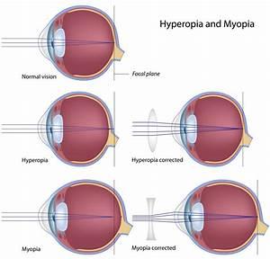 Ohio Lions Eye Research Foundation  U00bb What Is Myopia