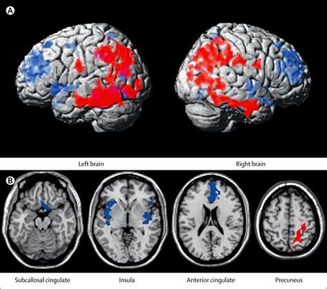 subcallosal cingulate deep brain stimulation  treatment