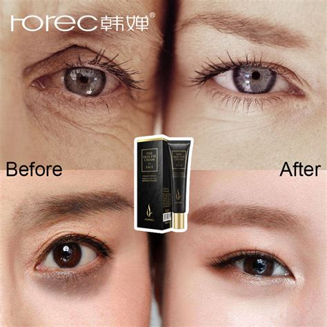 ROREC Hyaluronic Acid Eye Serum Anti Wrinkle Snail Remover