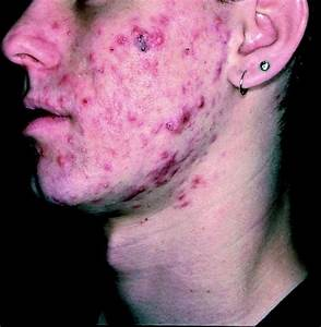 Is it possible to treat mild cystic acne without accutane ...