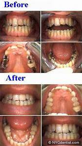 NY Professional Teeth Whitening for Yellow or Gray Teeth ...