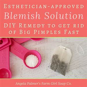 How To Get Rid Of A Big Pimple Naturally  Simple Diy